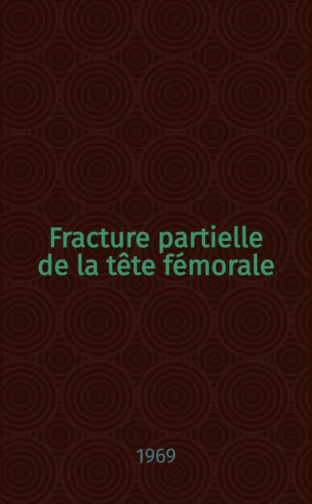 Fracture partielle de la tête fémorale : Thèse ..